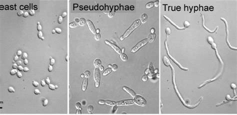 Candida Albicans True Hyphae – Yeast Infection and Candida