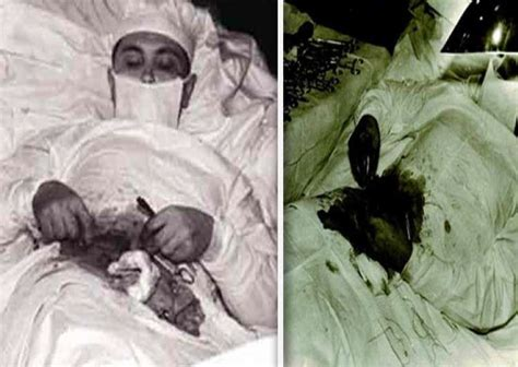 Incredible: Meet the Russian doctor who removed his own