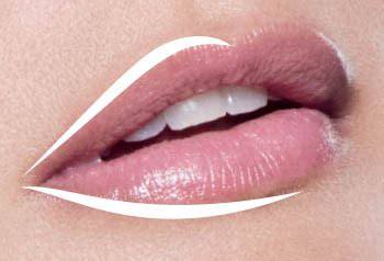 Juvederm Face & Lip Injections Plymouth, Northville