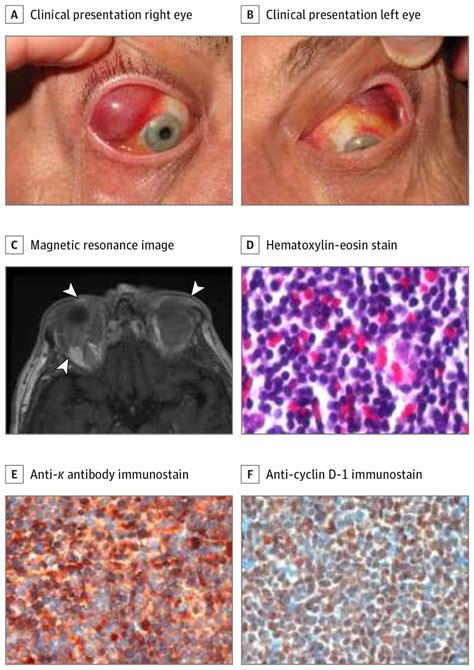 Clinicopathological Features of Ocular Adnexal Mantle-Cell